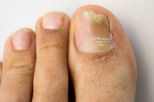Các loại bệnh thường gặp ở chân mọi người đừng chủ quan